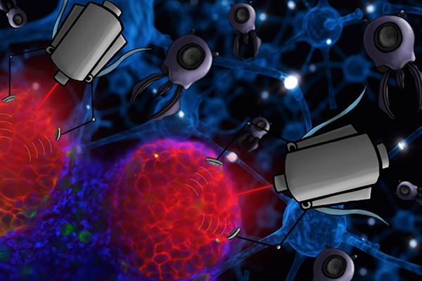 Nano treatment bots cancerous cells elemination concept